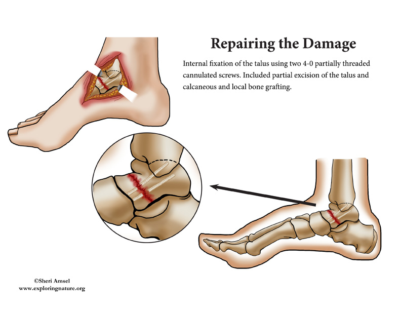 Ankle Surgery