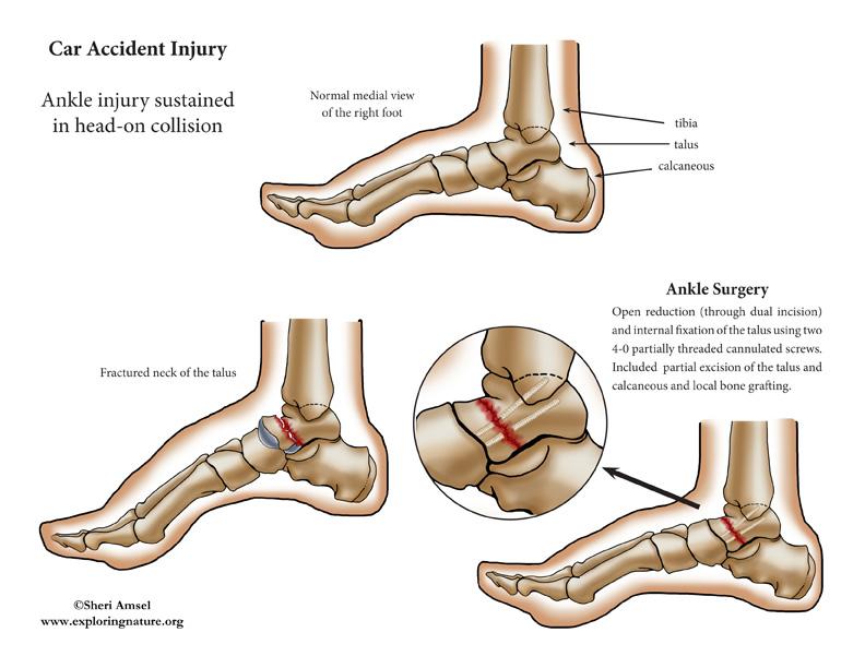 Ankle Injury Pinned